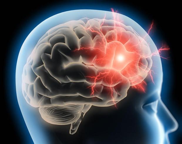 Managing migraine