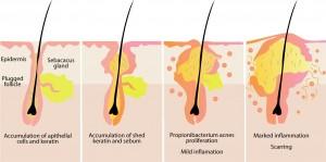 Acne: 'diabetes of the skin'