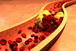clogged-artery-with-platelets-and-cholesterol-plaque